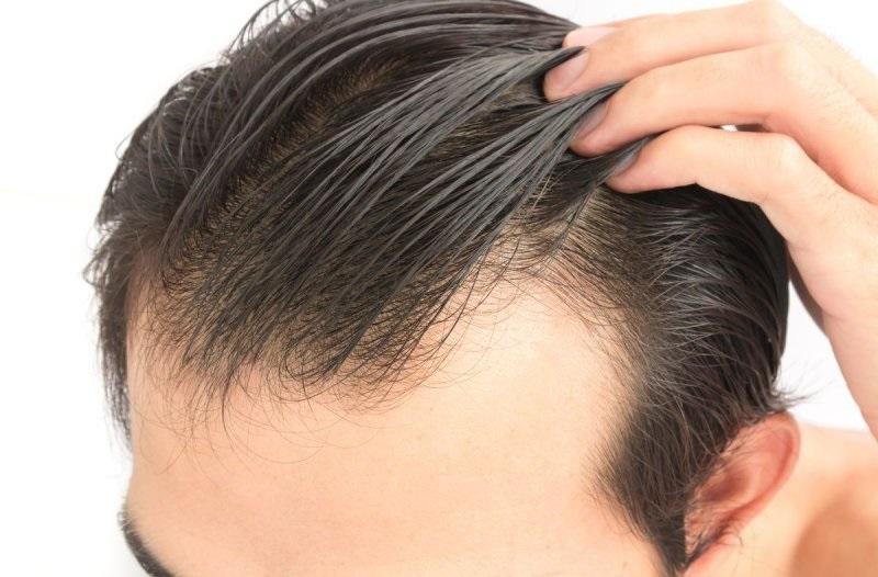 gel para el cabello